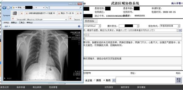 富士胶片远程诊断系统Octopus实现医院间诊断图像和电子报告的互传