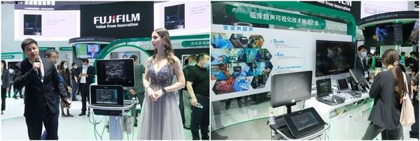 """富士胶片索诺声在CMEF 2021现场带来了""""临床超声可视化技术解决方案"""",重点介绍X-Porte 2.0系统"""